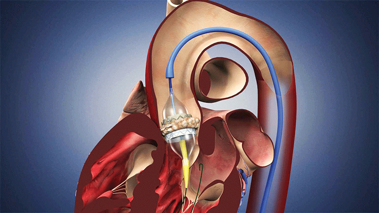 The interventional cardiologist or surgeon places the artificial valve in the diseased valve and inflates the balloon