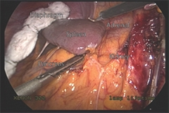 View of the organs surrounding the left adrenal gland through the laparoscopic transabdominal approach