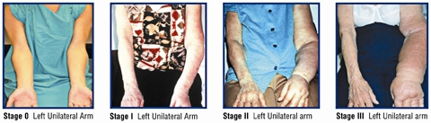 Lymphedema in the left arm of patients at stage 0, stage 1, stage 2 and stage 3. Images courtesy of Dr. Charles McGarvey of CLM Consulting, and Guenter Klose of Klose Training and Consulting, LLC.