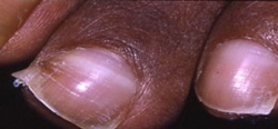 Very high calcium level causing calcium deposits in the fingernails
